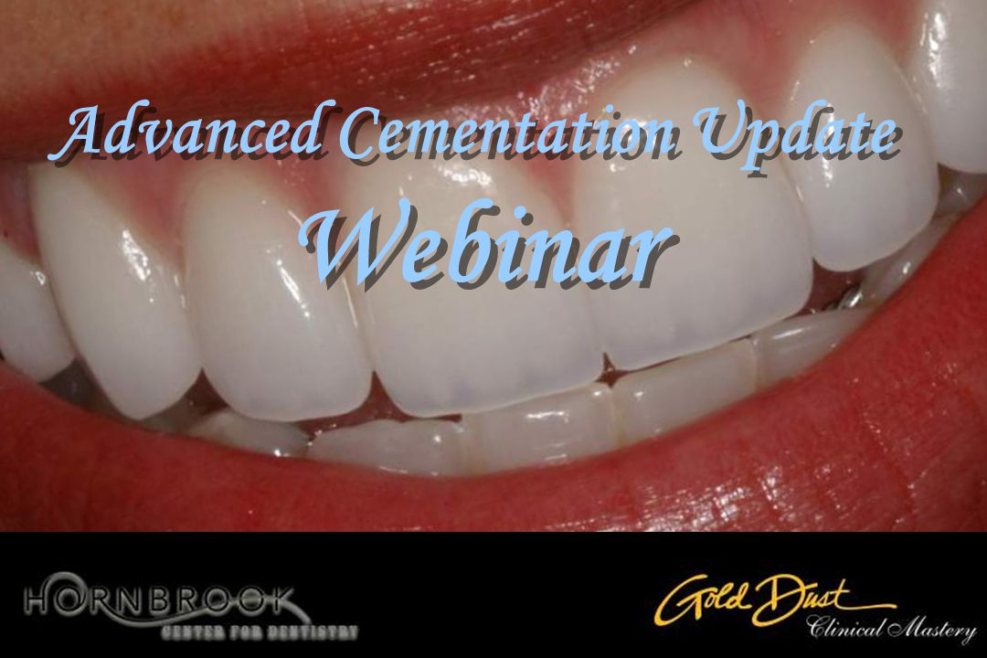 Advanced Cementation Update Webinar