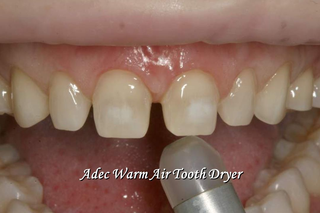 Adec Warm Air Tooth Dryer