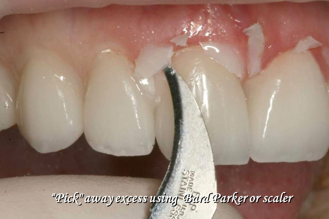 Pick away excess using Bard Parker or scaler