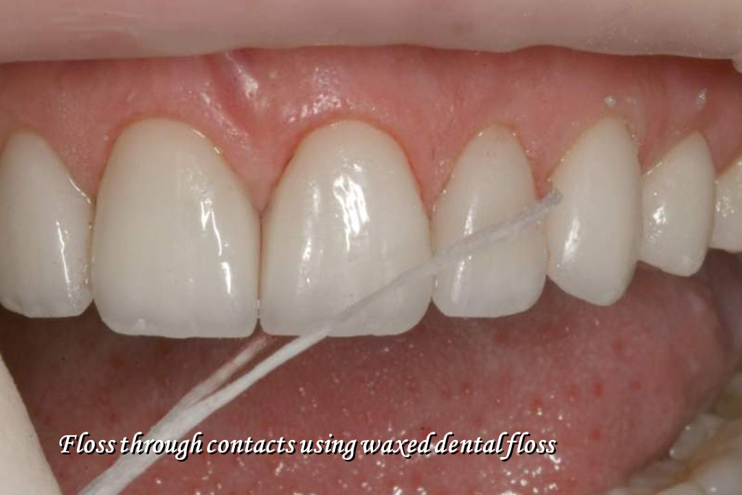 Floss through contacts using waxed dental floss