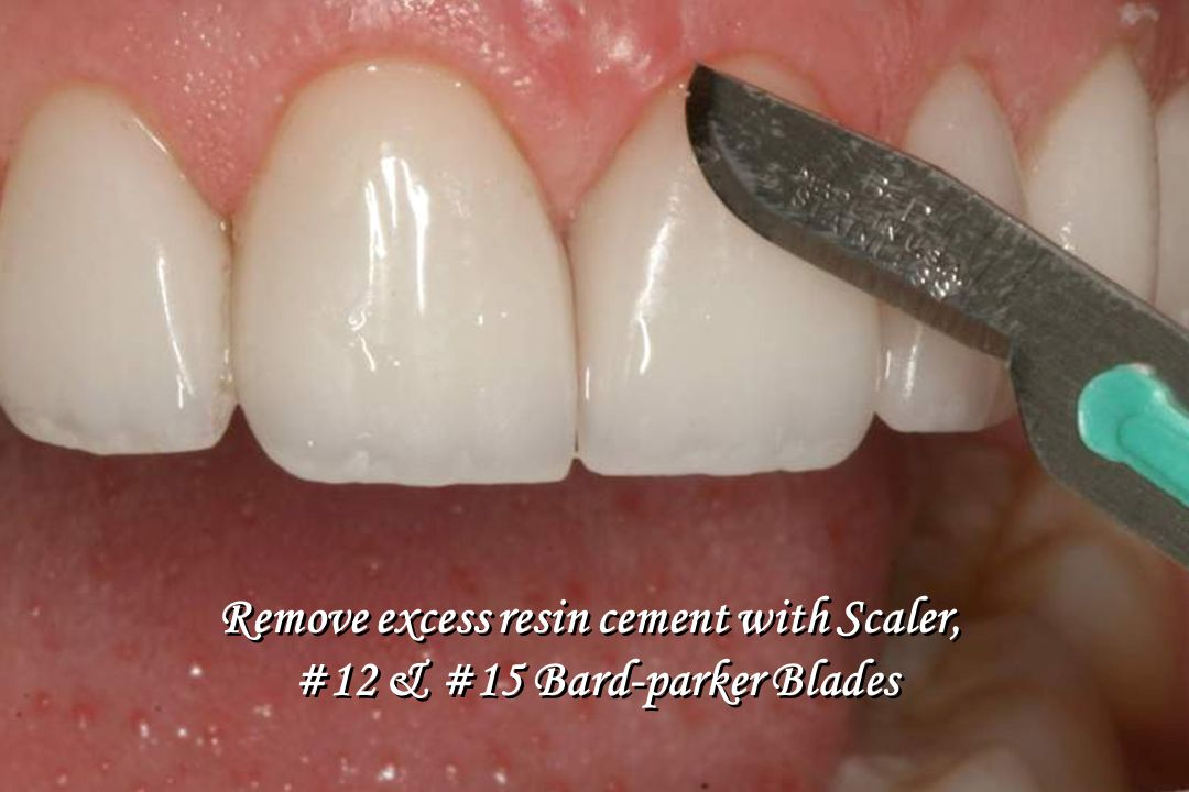 Remove excess resin cement with Scaler, #12 & #15 Bard-parker Blades