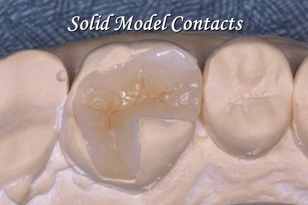 Solid Model Contacts