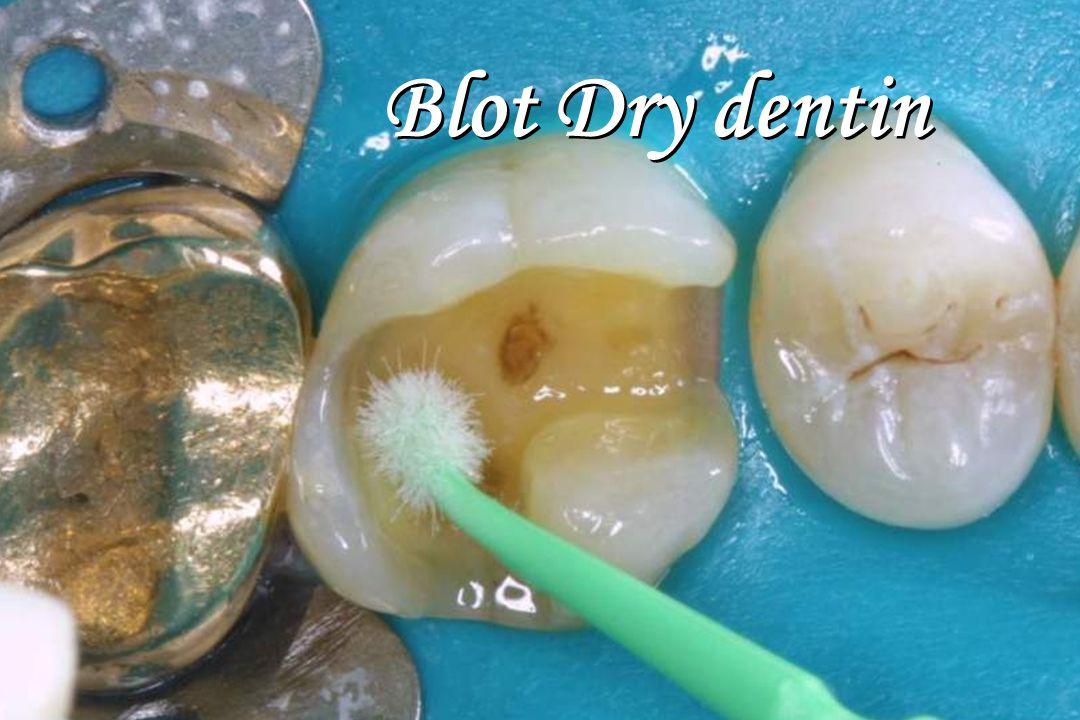 Blot Dry dentin