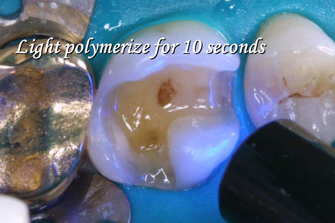 Light polymerize for 10 seconds