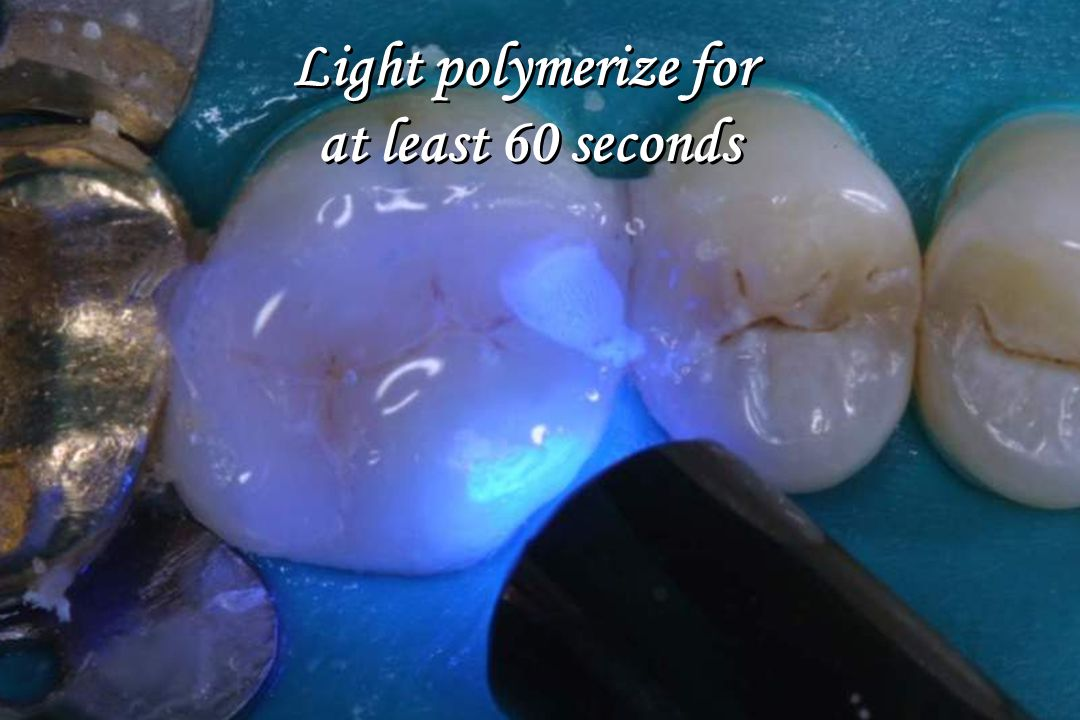Light polymerize for at least 60 seconds
