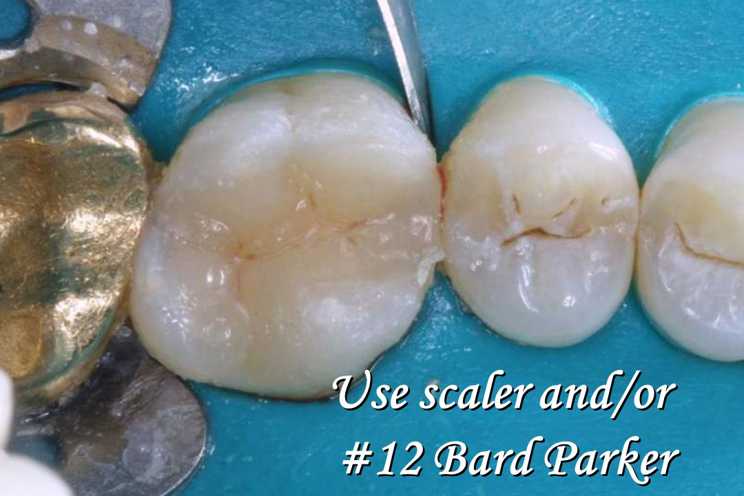 Use scaler and/or #12 Bard Parker