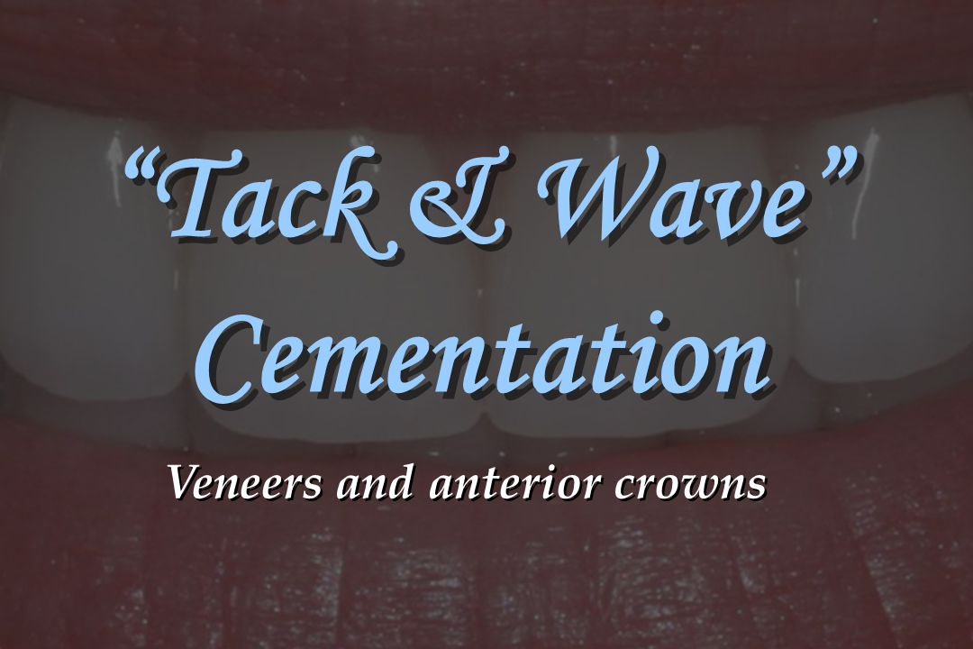 Tack & Wave Cementation