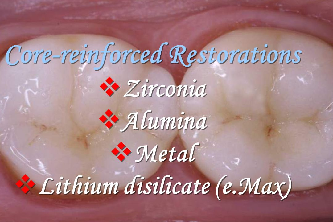 Core-reinforced Restorations Lithium disilicate (e.Max)