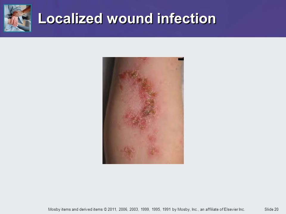 Localized wound infection