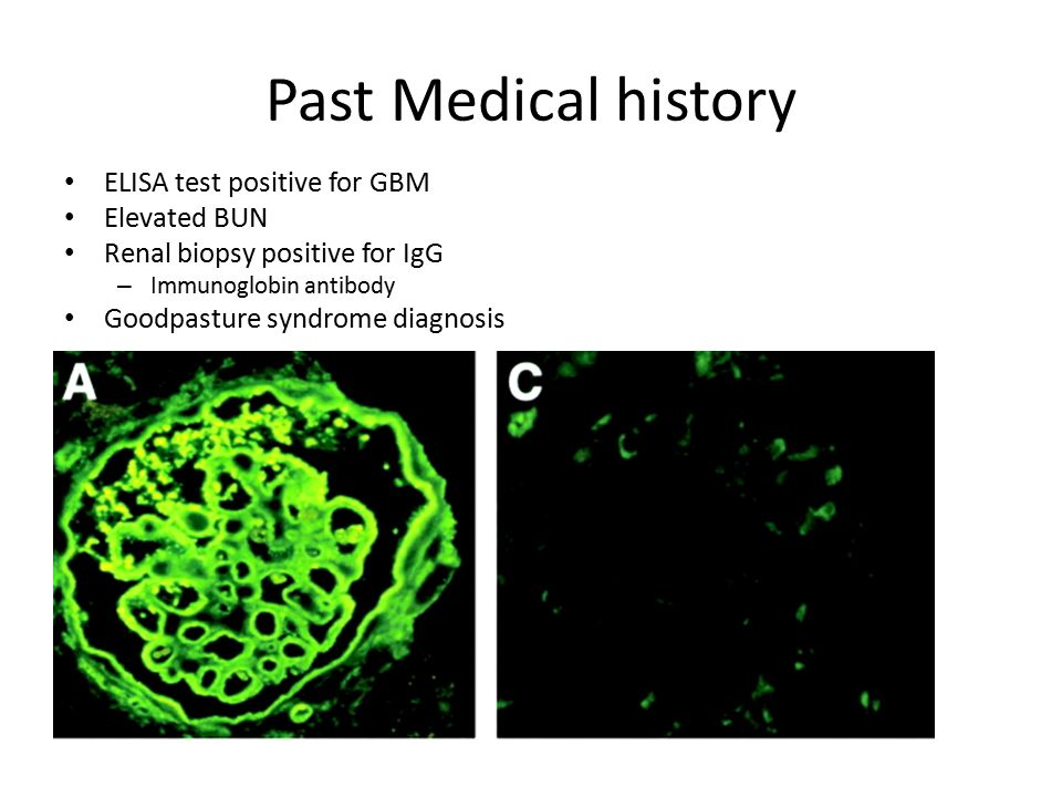 Past Medical history ELISA test positive for GBM Elevated BUN