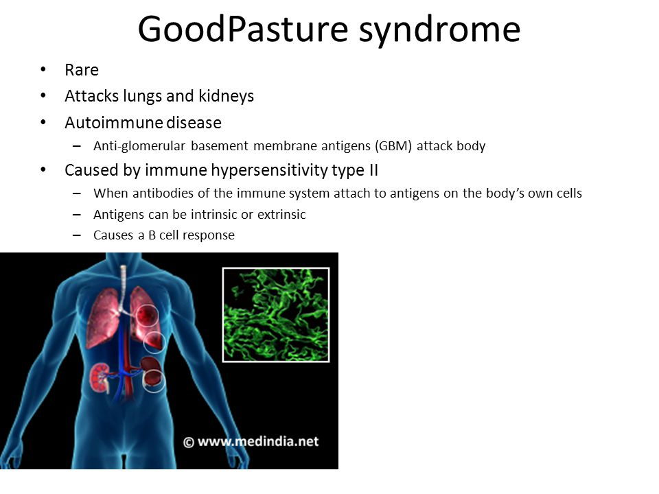 GoodPasture syndrome Rare Attacks lungs and kidneys Autoimmune disease
