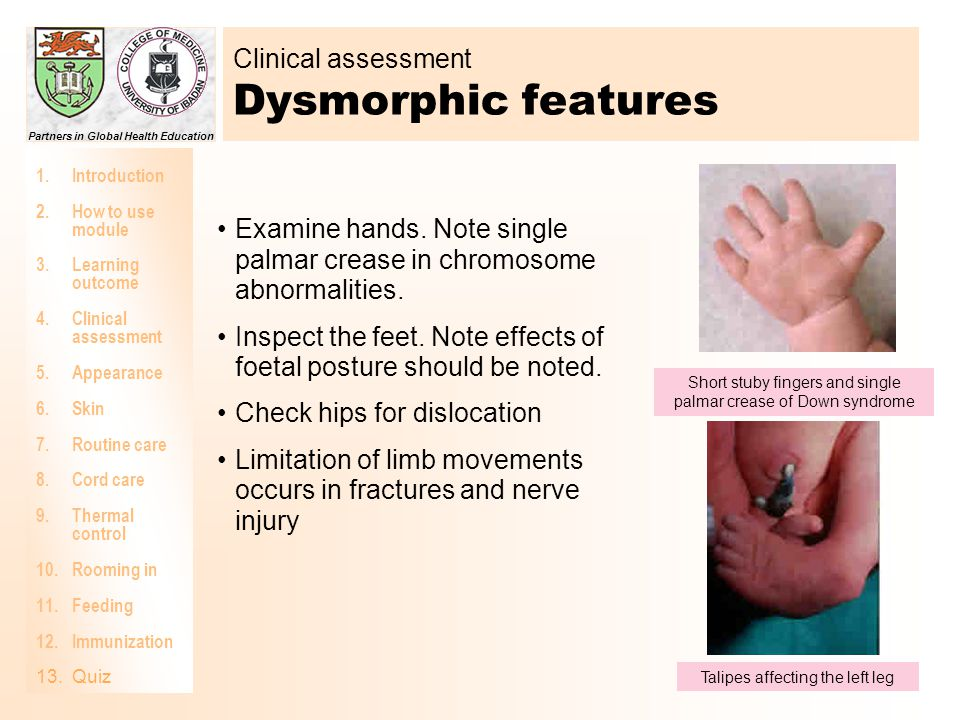Clinical assessment Dysmorphic features
