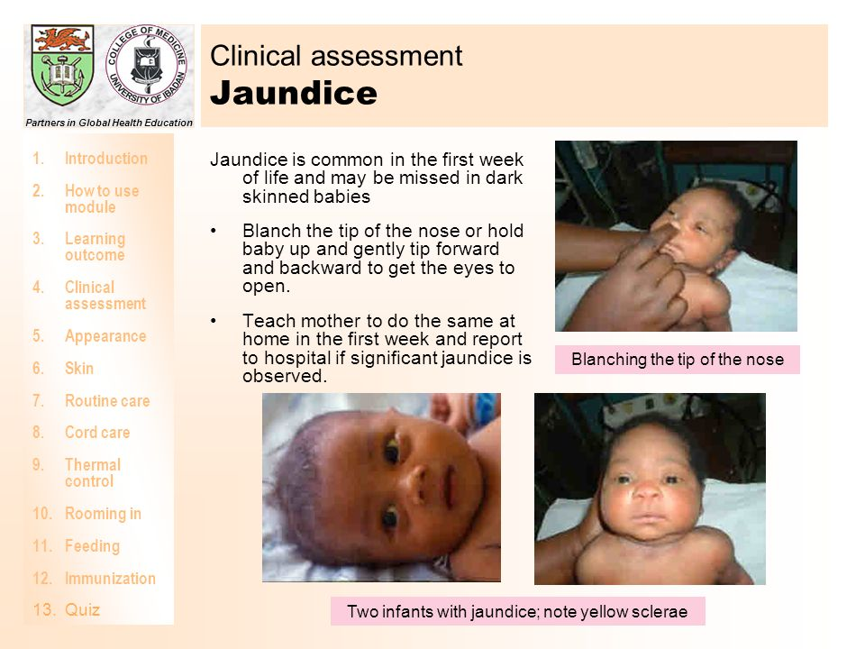 Clinical assessment Jaundice