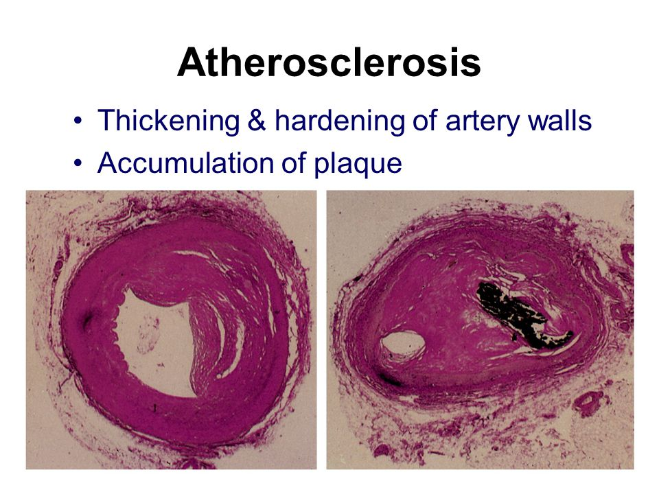 Atherosclerosis Thickening & hardening of artery walls