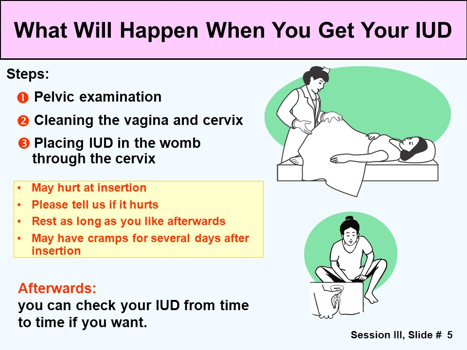 What Will Happen When You Get Your IUD