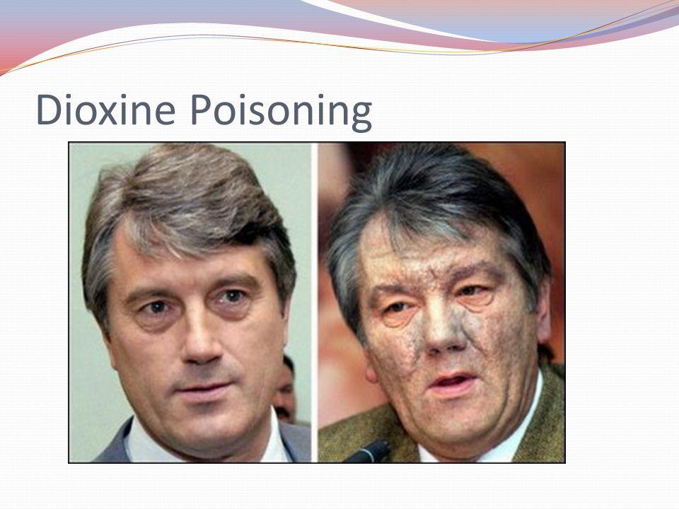 Dioxine Poisoning
