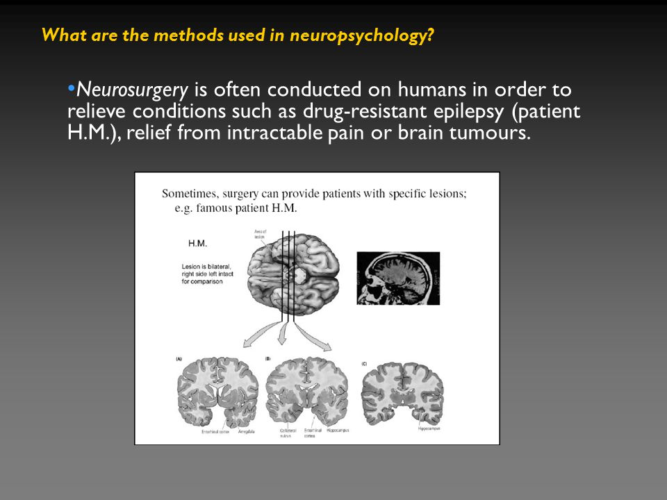 What are the methods used in neuropsychology