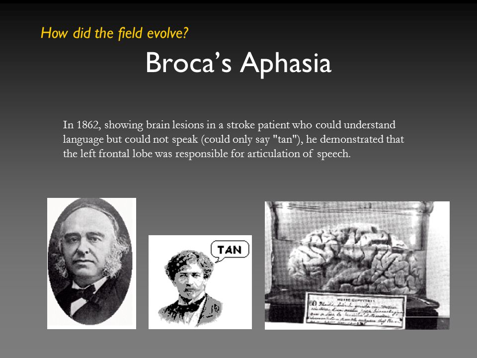 Broca's Aphasia How did the field evolve