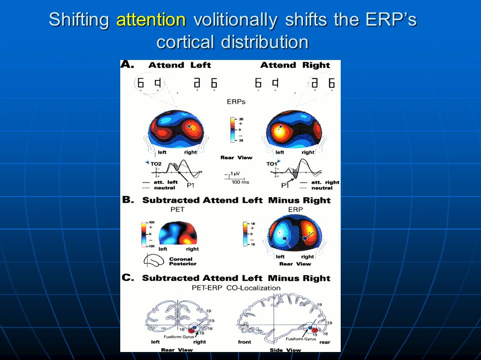 Shifting attention volitionally shifts the ERP's cortical distribution
