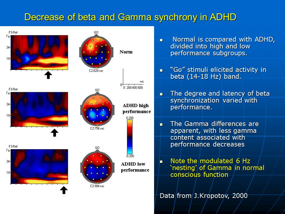 Decrease of beta and Gamma synchrony in ADHD