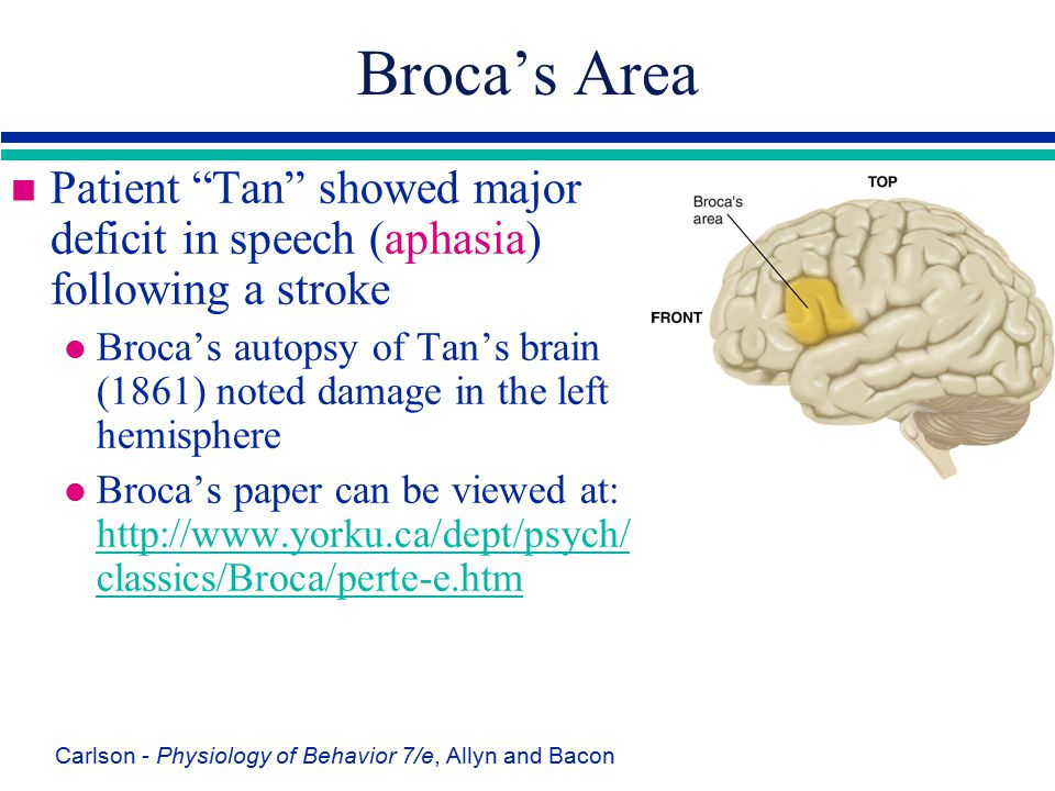 Broca's Area Patient Tan showed major deficit in speech (aphasia) following a stroke.