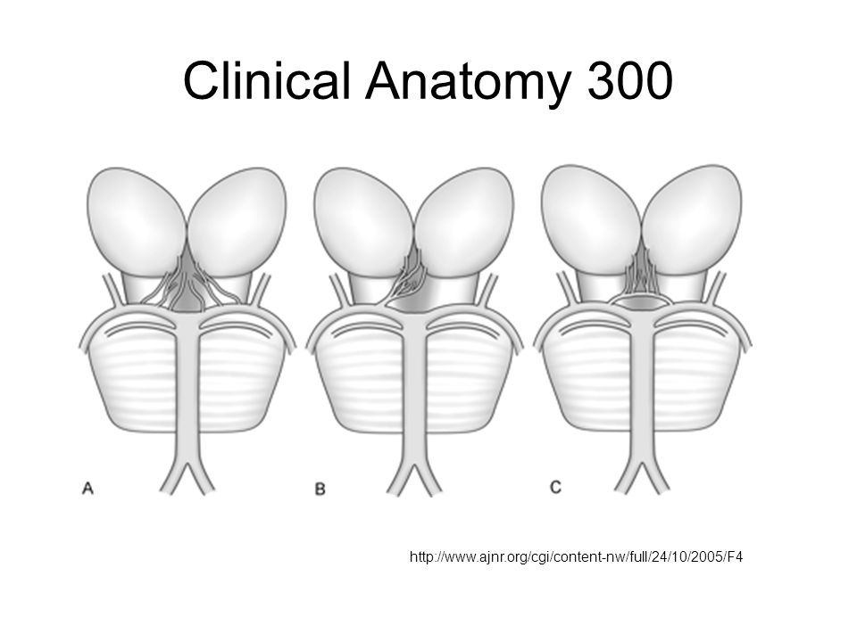 Clinical Anatomy 300 http://www.ajnr.org/cgi/content-nw/full/24/10/2005/F4