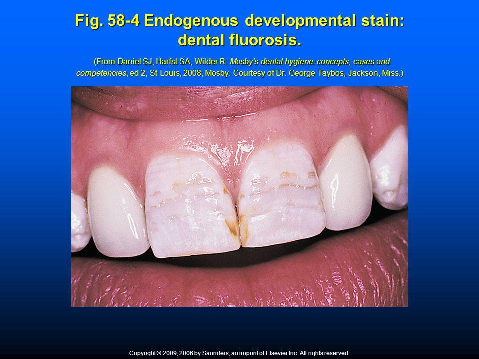 Fig. 58-4 Endogenous developmental stain: dental fluorosis