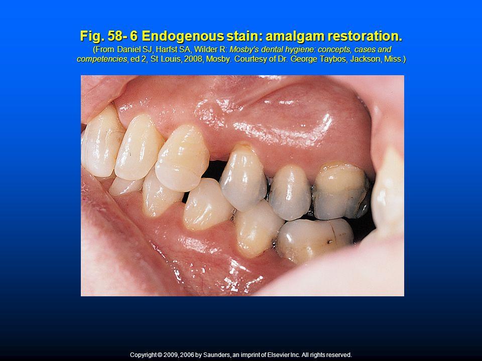 Fig. 58- 6 Endogenous stain: amalgam restoration