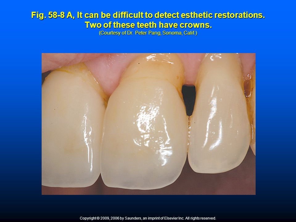 Fig. 58-8 A, It can be difficult to detect esthetic restorations