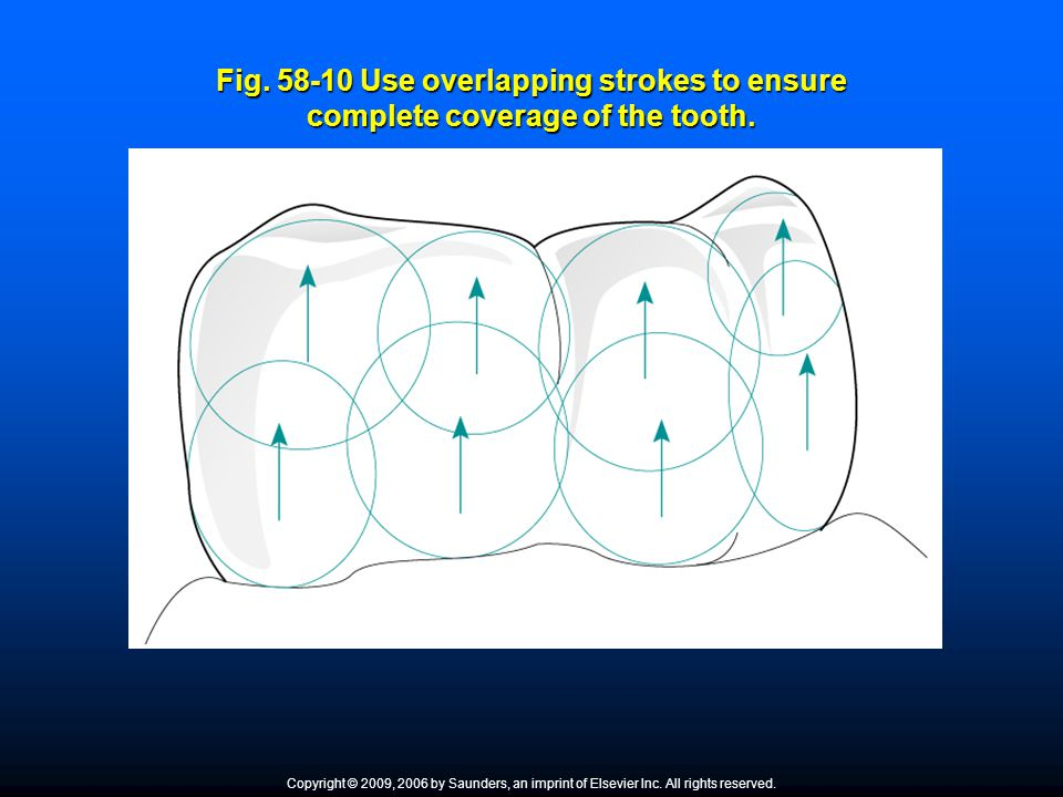 Fig. 58-10 Use overlapping strokes to ensure complete coverage of the tooth.