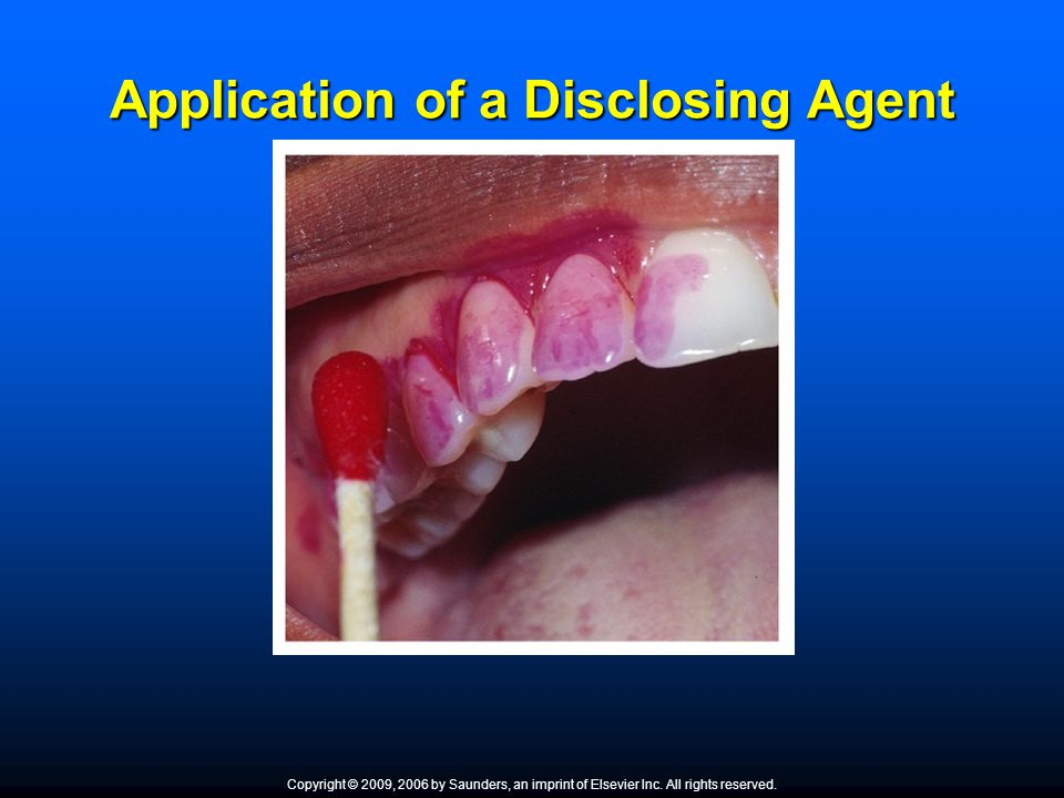 Application of a Disclosing Agent