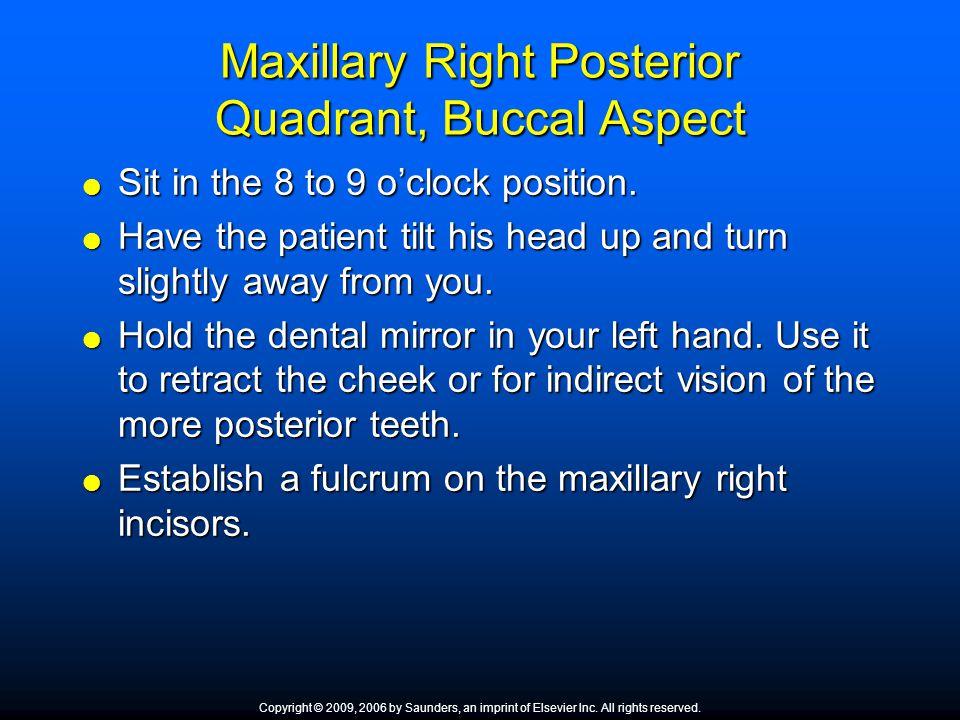 Maxillary Right Posterior Quadrant, Buccal Aspect