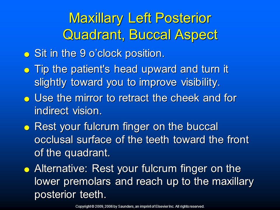 Maxillary Left Posterior Quadrant, Buccal Aspect