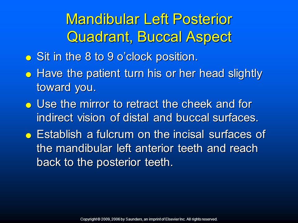 Mandibular Left Posterior Quadrant, Buccal Aspect