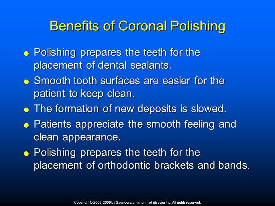 Benefits of Coronal Polishing