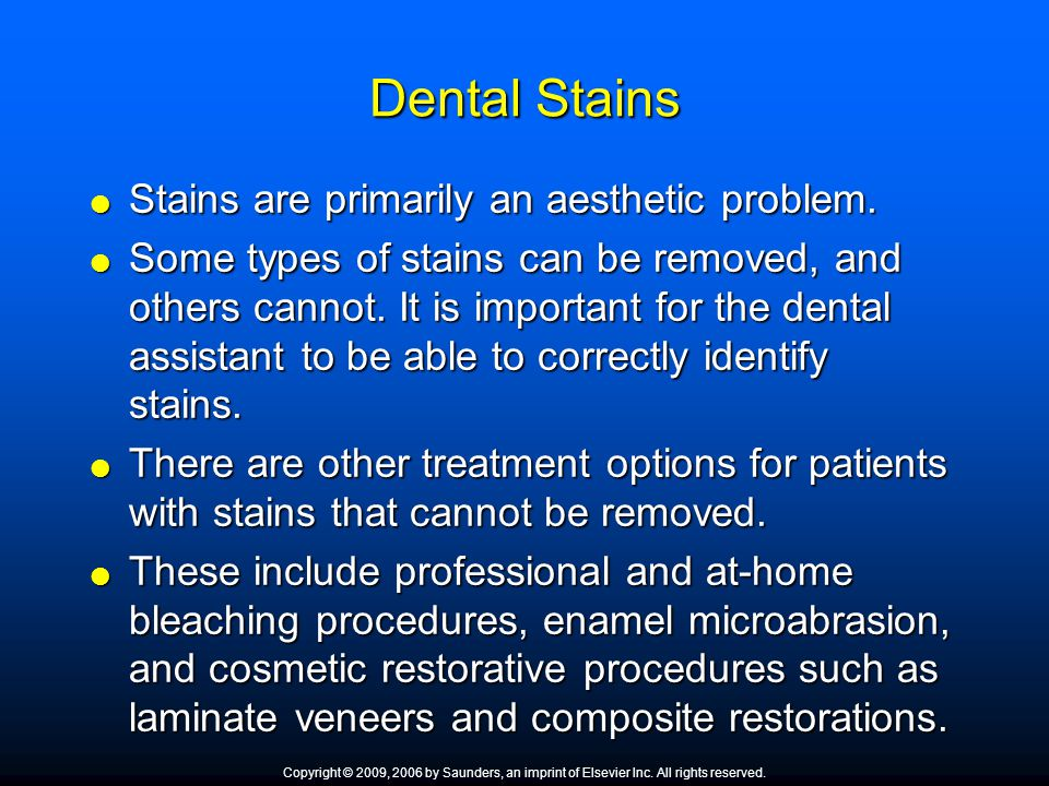 Dental Stains Stains are primarily an aesthetic problem.