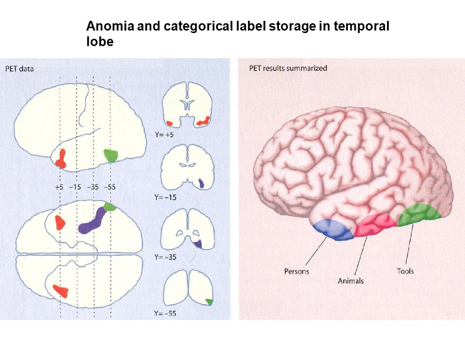Anomia and categorical label storage in temporal lobe