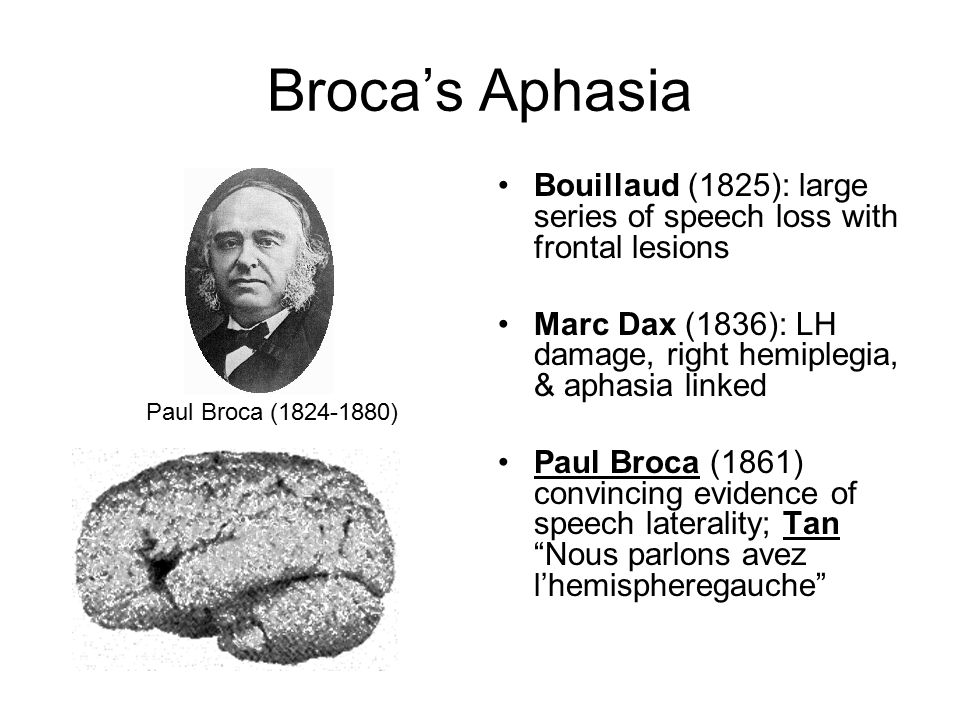 Broca's Aphasia Bouillaud (1825): large series of speech loss with frontal lesions. Marc Dax (1836): LH damage, right hemiplegia, & aphasia linked.
