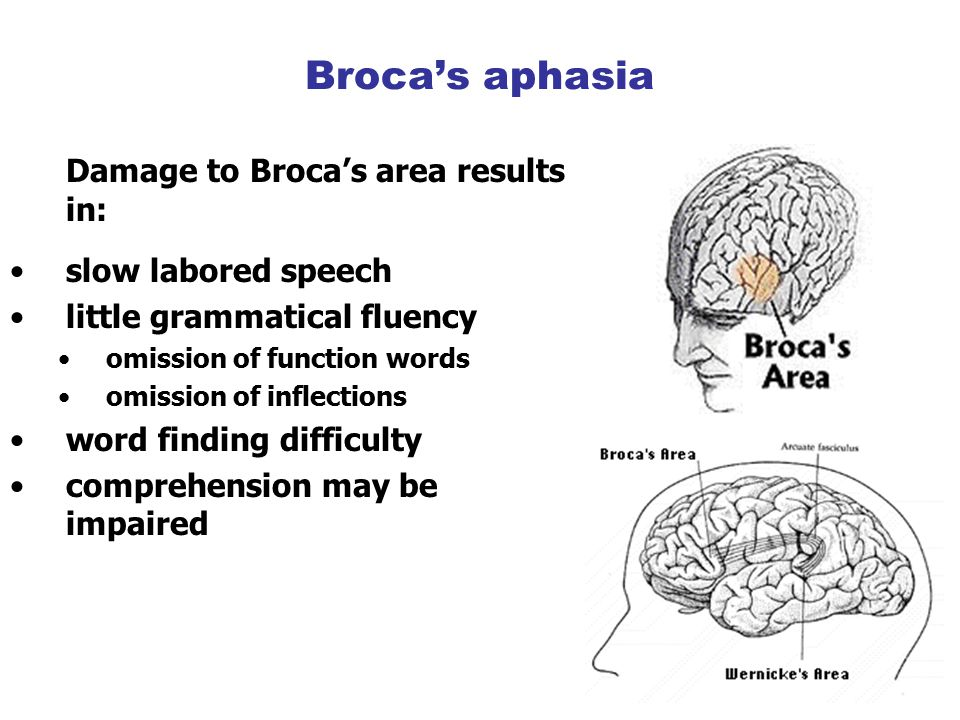 Broca's aphasia Damage to Broca's area results in: slow labored speech