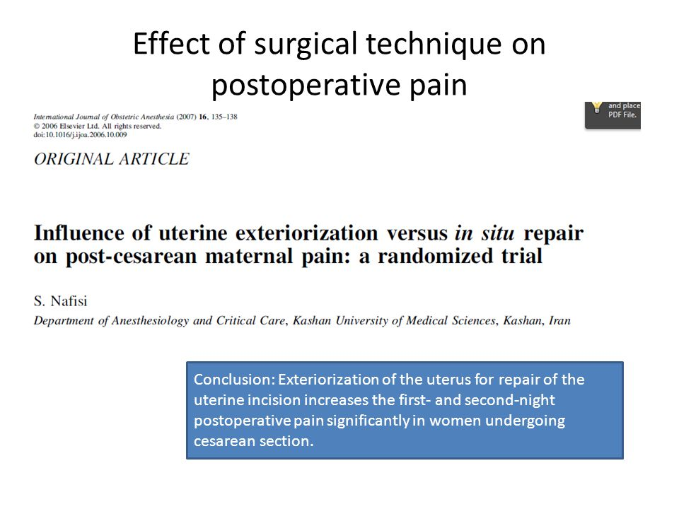 Effect of surgical technique on postoperative pain
