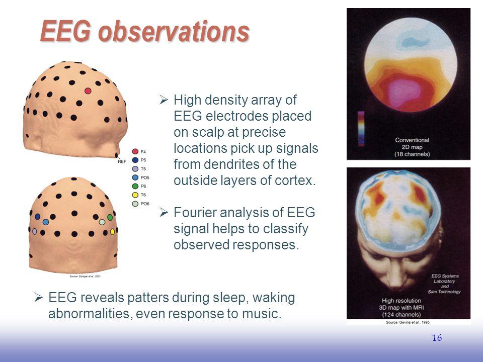 EEG observations