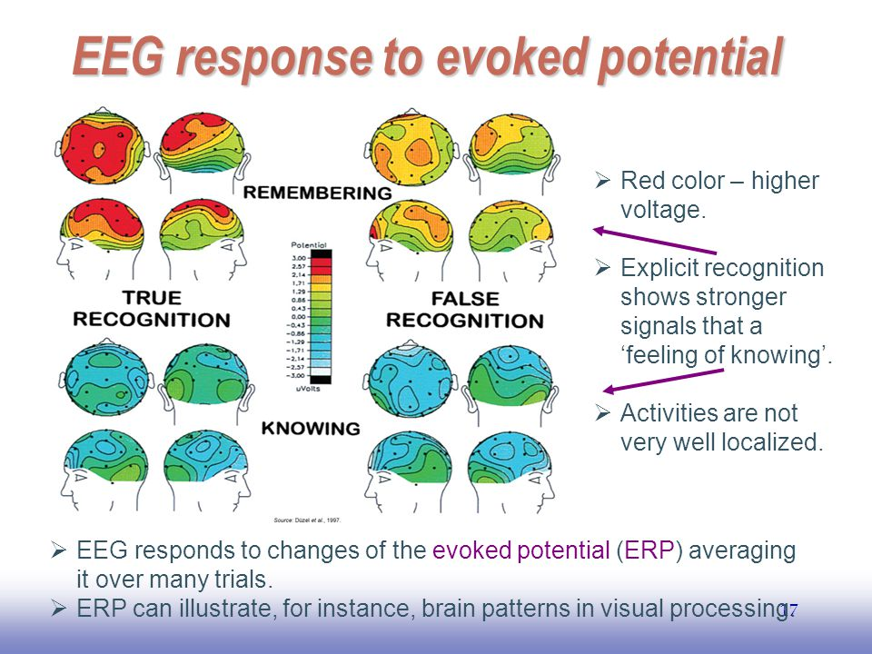 EEG response to evoked potential