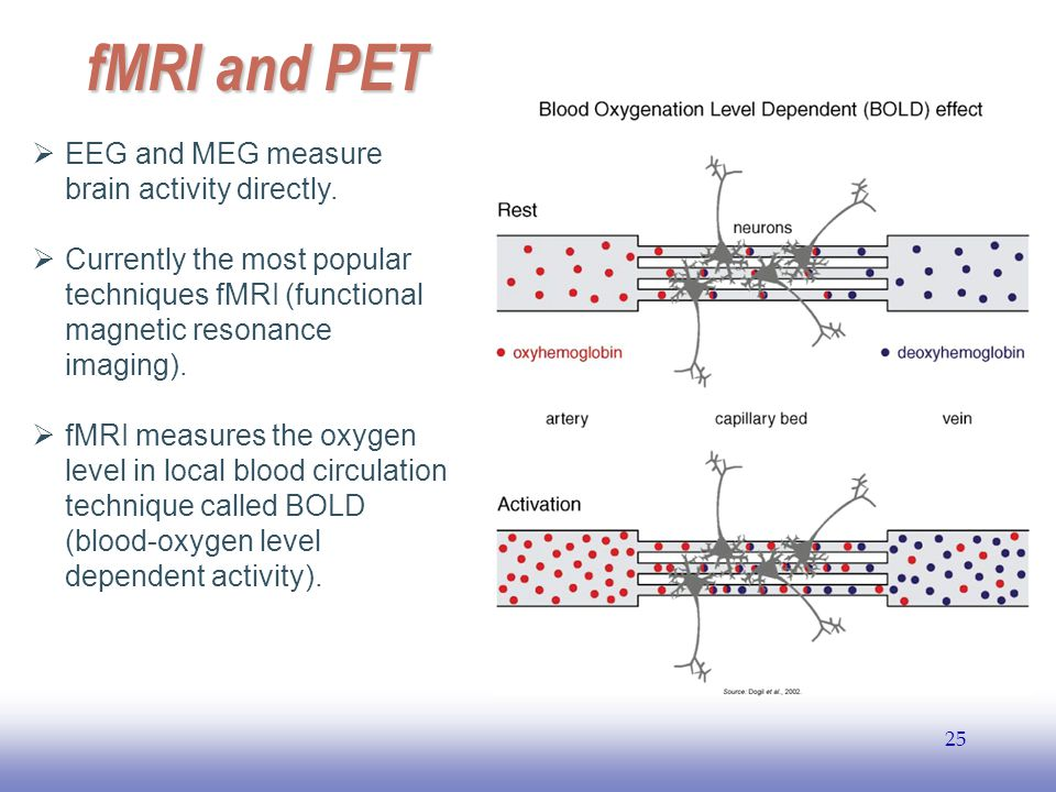 fMRI and PET EEG and MEG measure brain activity directly.