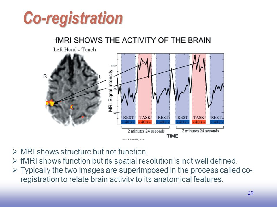 Co-registration MRI shows structure but not function.