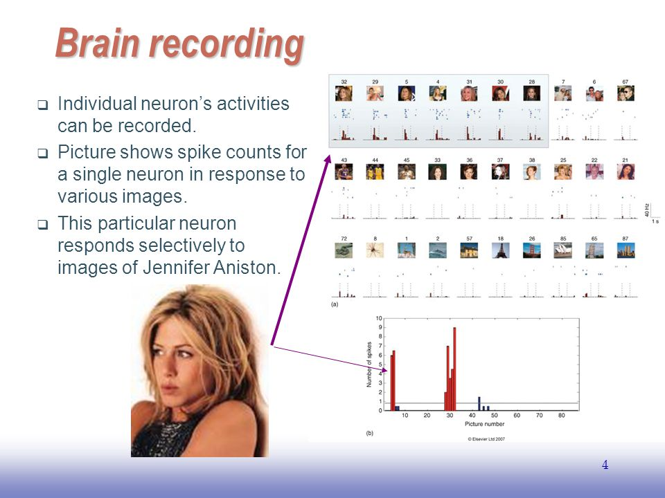 Brain recording Individual neuron's activities can be recorded.