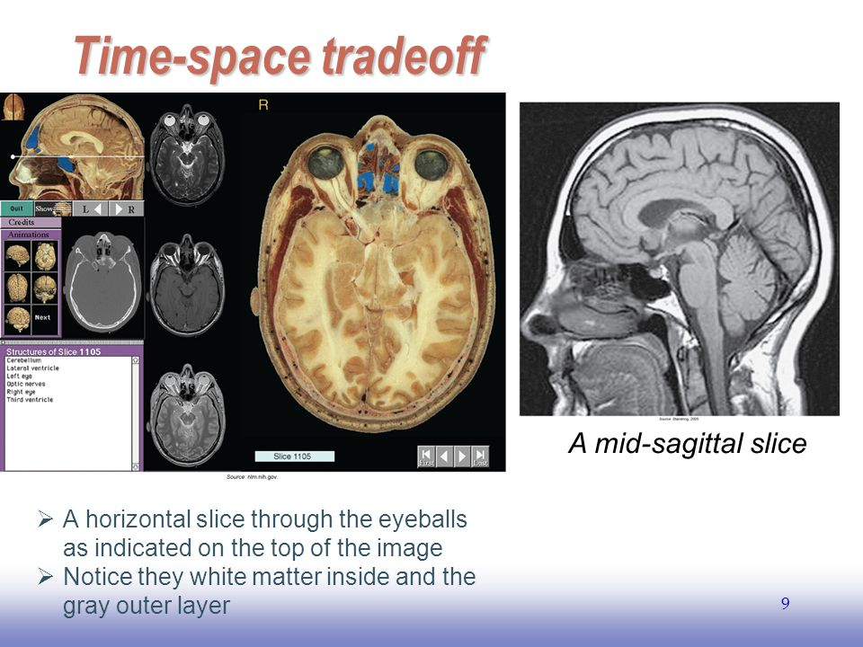 Time-space tradeoff A mid-sagittal slice