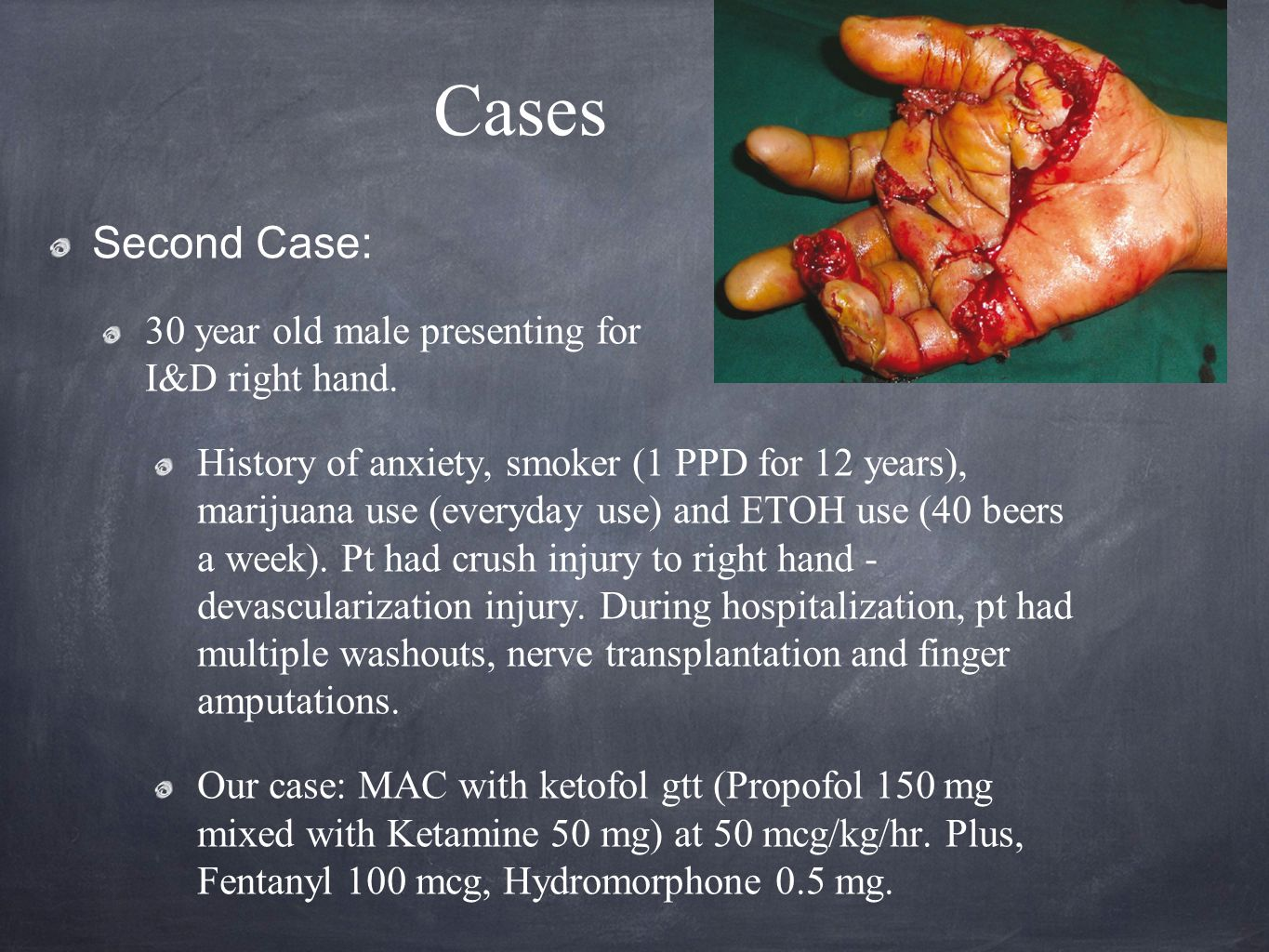 Cases Second Case: 30 year old male presenting for I&D right hand.
