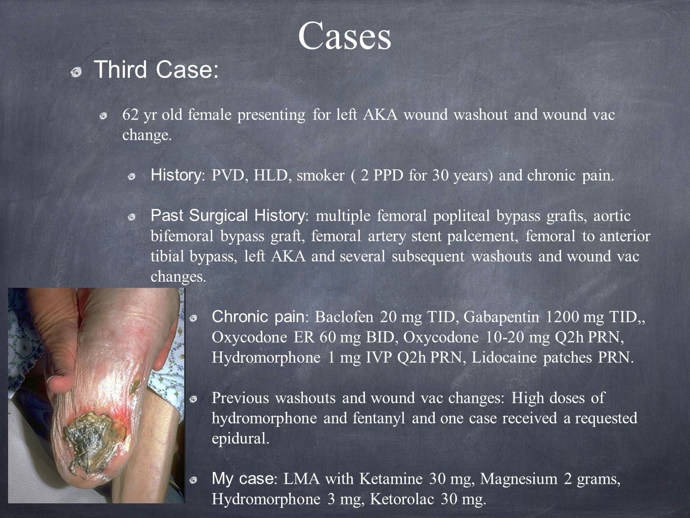 Cases Third Case: 62 yr old female presenting for left AKA wound washout and wound vac change.