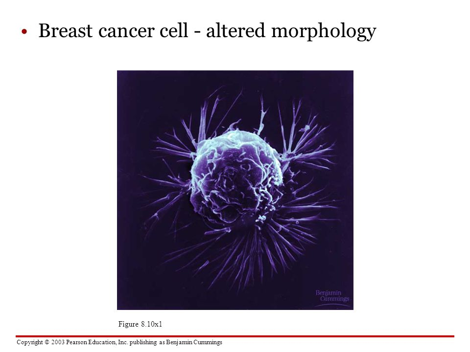 Breast cancer cell - altered morphology