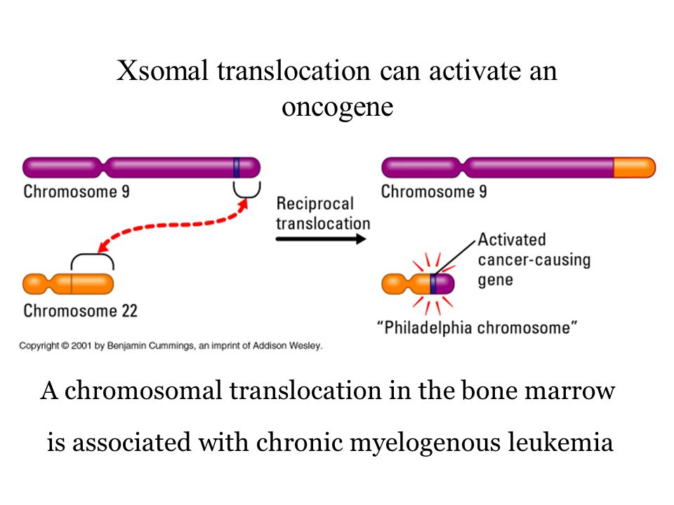 Xsomal translocation can activate an oncogene